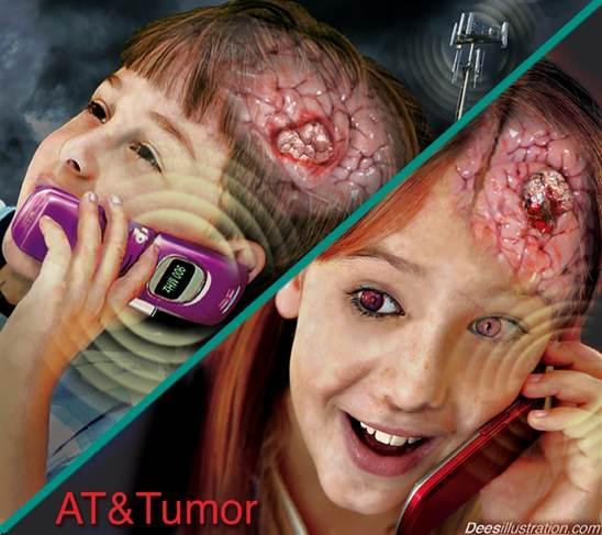 EMF Brain Tumour