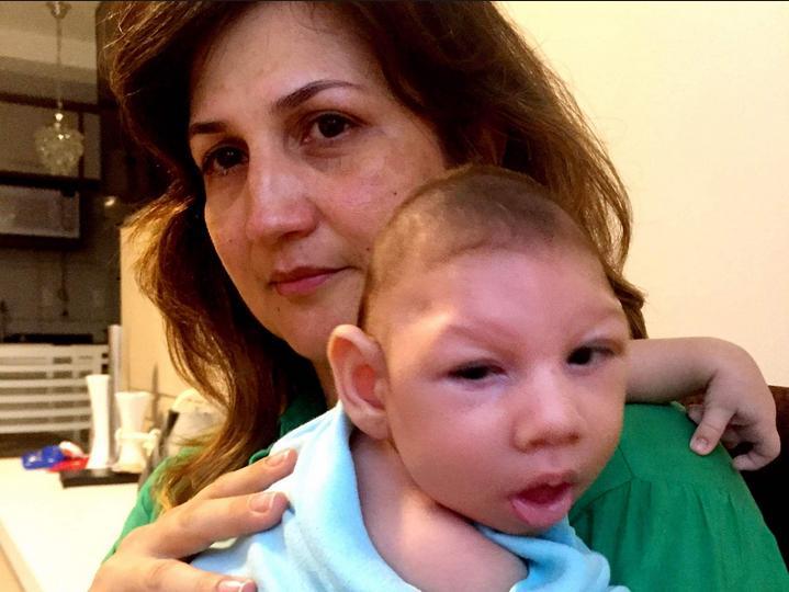 Zika Virus small head baby