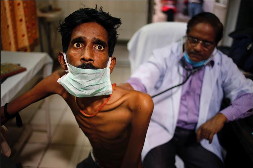 Third World Tuberculosis Epidemic 2016