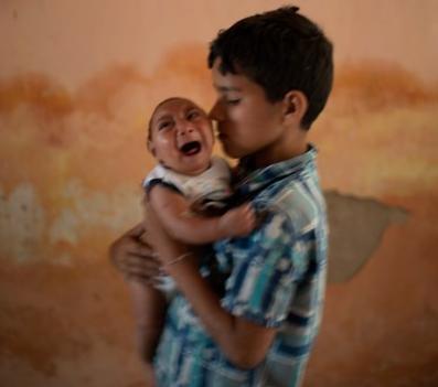 Zika Virus causes microcephaly
